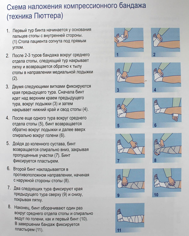 техника-наложения-бинта