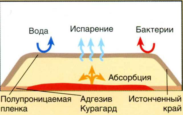 вкапе